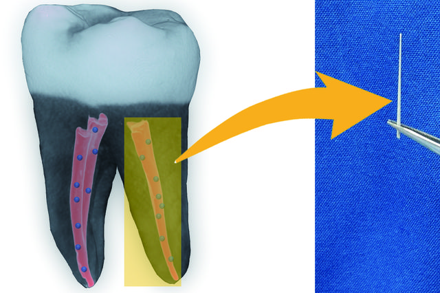Nanodiamonds might prevent tooth loss after root canals