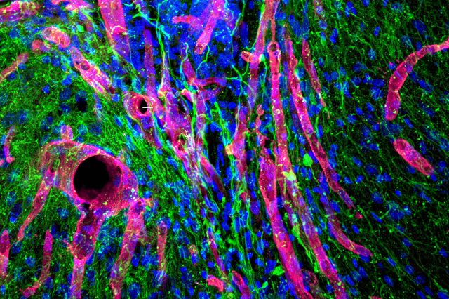 May 21, 2018 | Biomaterial developed at UCLA helps regrow brain tissue after stroke in mice