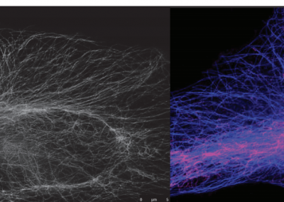 November 19, 2019 | From Eye To Insight Seminar: New Frontiers in Super-Resolution, Nanoscopy, and Functional Imaging STED Imaging with Fluorescence Lifetime Contrast