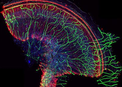 March 4, 2020 | UCLA microscopy image and video contest winners selected