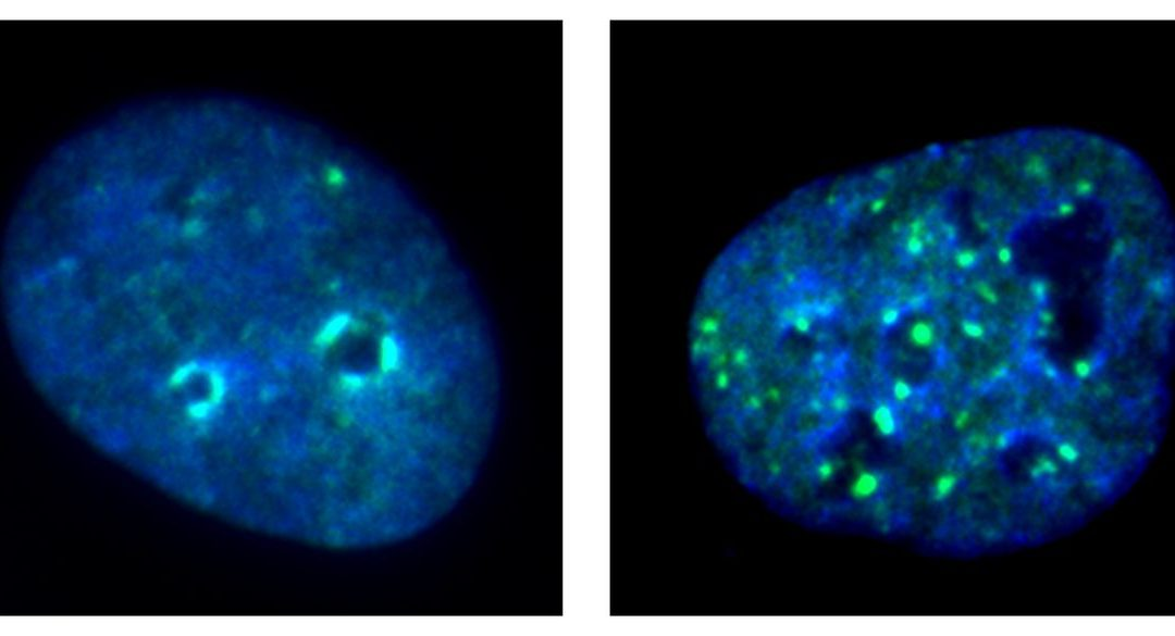 March 23, 2021 | Deactivating cancer cell gene boosts immunotherapy for head and neck cancers