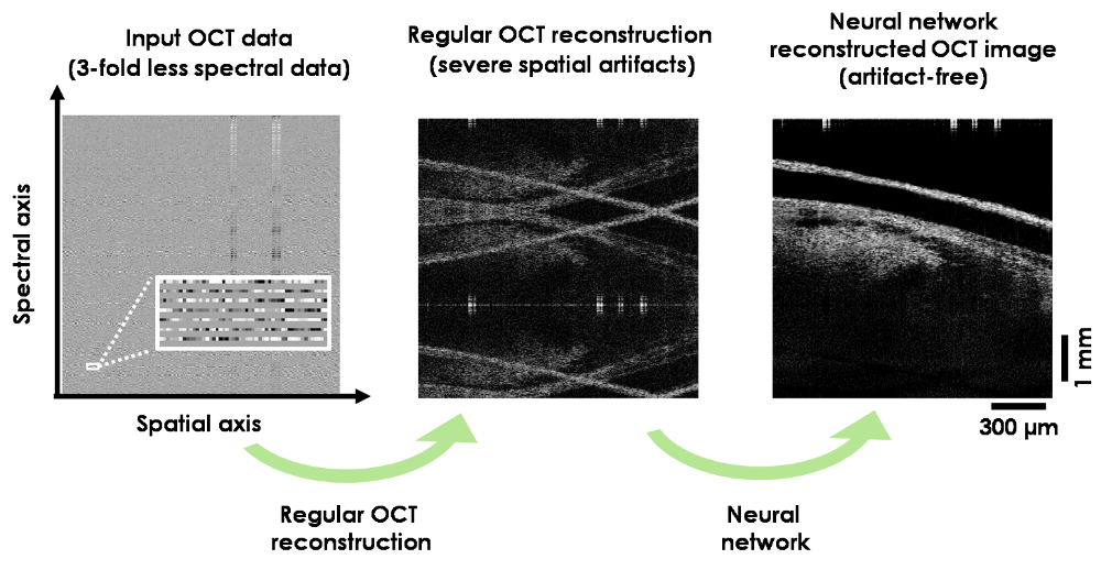 Deep learning improves image reconstruction in optical coherence tomography using significantly less spectral data.  Image credit: Ozcan Lab @UCLA.