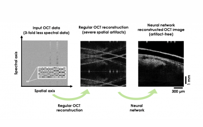 July 29, 2021 | Deep learning improves image reconstruction in optical coherence tomography using less data