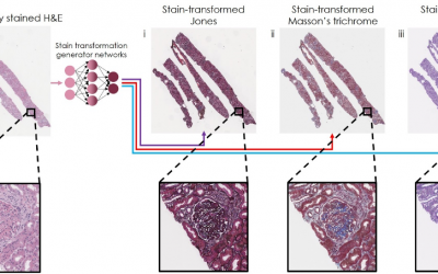 August 17, 2021 | Artificial Intelligence Re-stains Images of Tissue Biopsy with new Stains, Improving Accuracy of Diagnoses