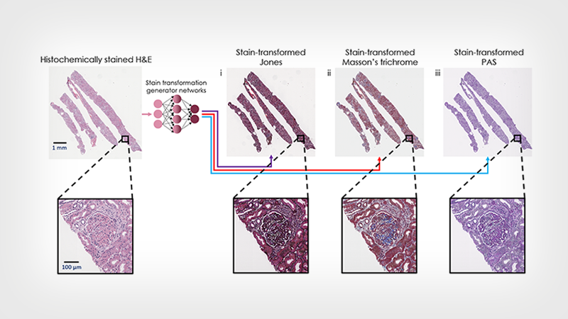 August 24, 2021 | Artificial Intelligence Re-stained Images of Tissue Biopsy Expedite Diagnoses